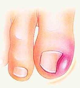 Противопротозойное средство и грибок